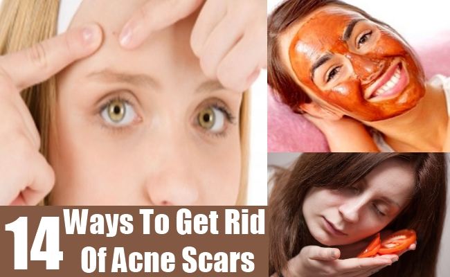 banish acne scars roller review